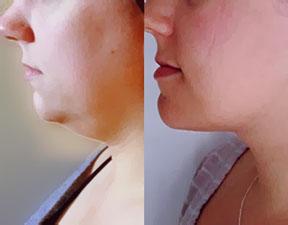liposuction-tampa-fl-wesley-chapel